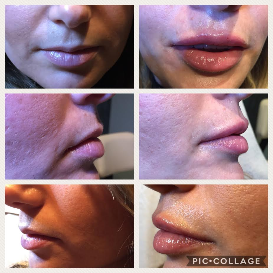 Before and After Lip Augmenation with Injectable Fillers