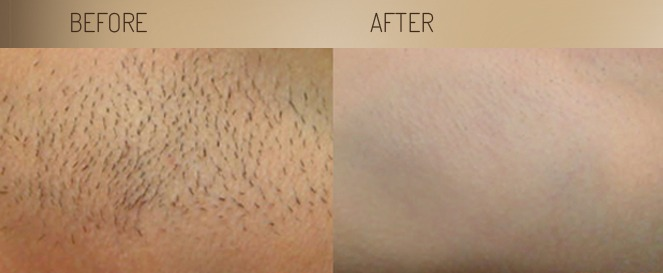 Laser Hair Removal is a Must Have | Essent Spa | Philadelphia